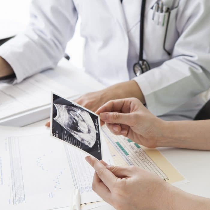 Women who have received ultrasound photo of the fetus